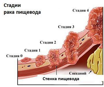 таблица стадий