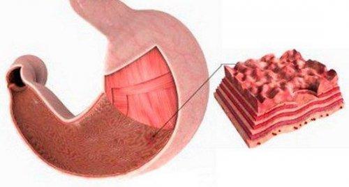 Как убрать тяжесть в желудке при панкреатите thumbnail