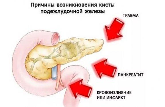 кровоизлияние в поджелудочной железе