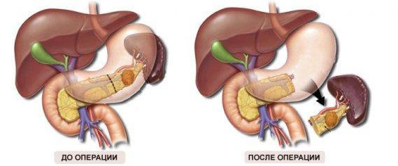 Что такое киста тела поджелудочной железы