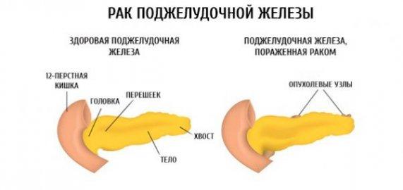 опухолевые узлы в поджелудочной железе
