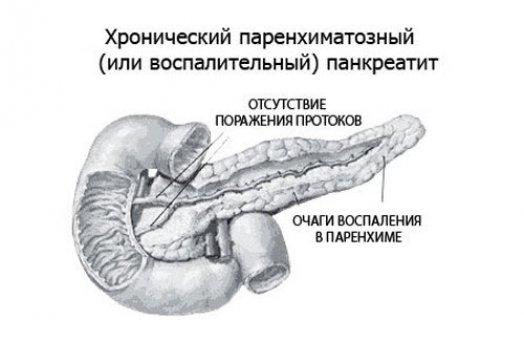 Хронический паренхиматозный панкреатит можно вылечить thumbnail
