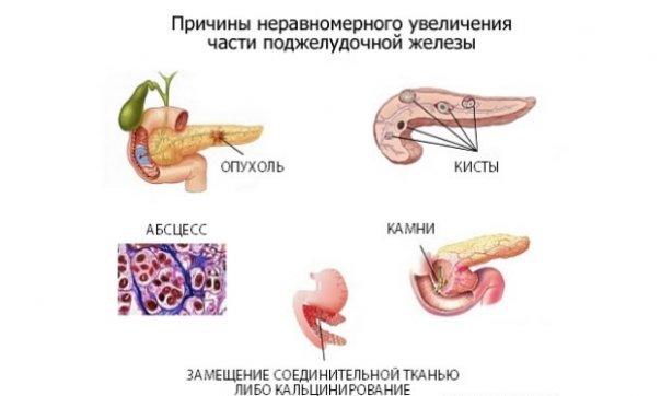 Как увеличить размер поджелудочной железы thumbnail