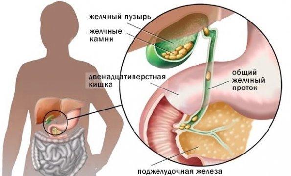 Стенки желчного пузыря деформированы в области дна